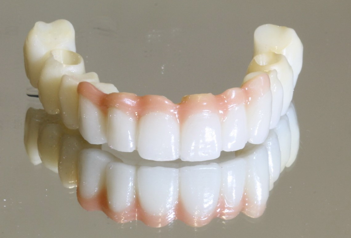 Bio HPP bridges and dentures