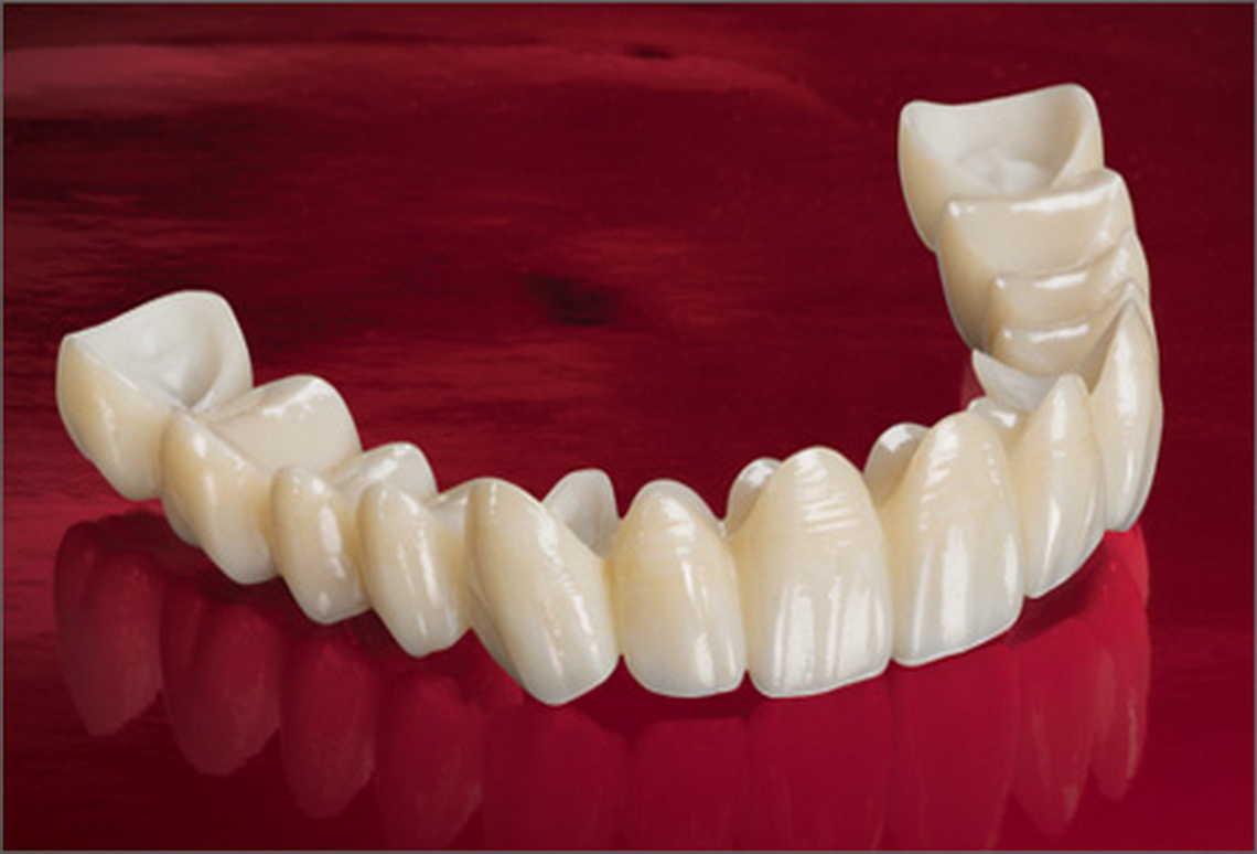 Ceramic crowns and bridges