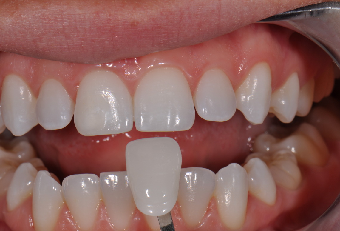 Ceramic facets - Veneers