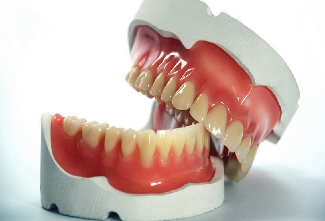Total and partial dentures