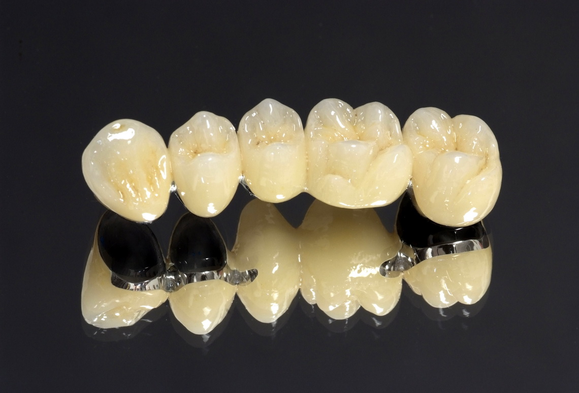 Metaloceramic crowns and bridges